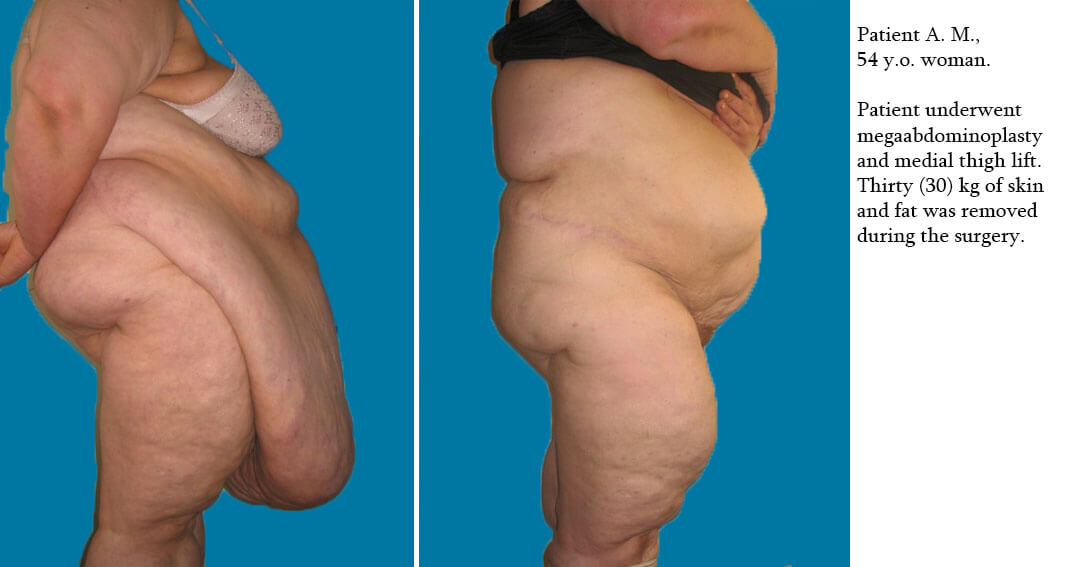 Massive Weight Loss Before And After Photos Arzni Aesthetica